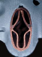Разрез биметаллического теплообменника